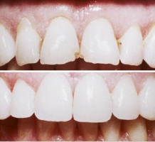 Veneers Keramik Verblendschalen natürliche Zahnfarbe